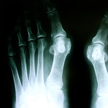 Fußchirurgie in der CPO München