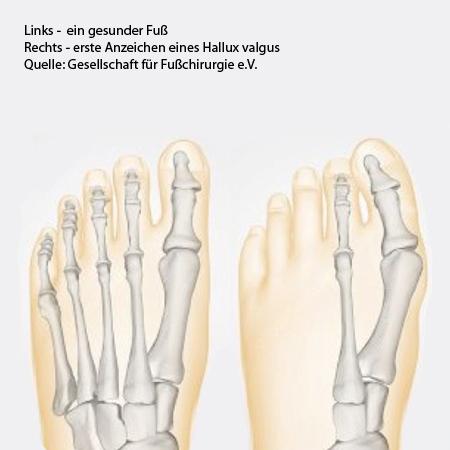 Fußchirurgie in der CPO München Hallux valgus