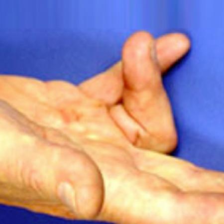 Handchirurgie schnellender Finger